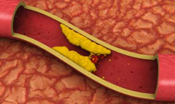 Control bad cholesterol to prevent tumour growth