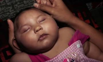 Key proteins that make Zika virus deadly identified