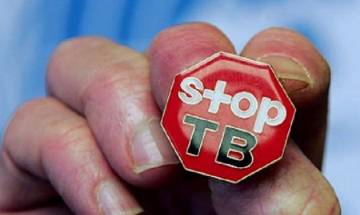 Govt to provide incentives for private TB doctors, patients