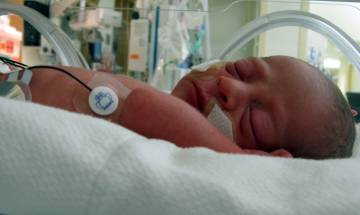 Baby girl undergoes heart valve repair operation within 6 hours of birth at Sri Ganga Ram Hospital