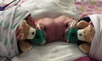 Rare surgery: Doctors successfully separate twin girls joined at the head at Children's Hospital of Philadelphia