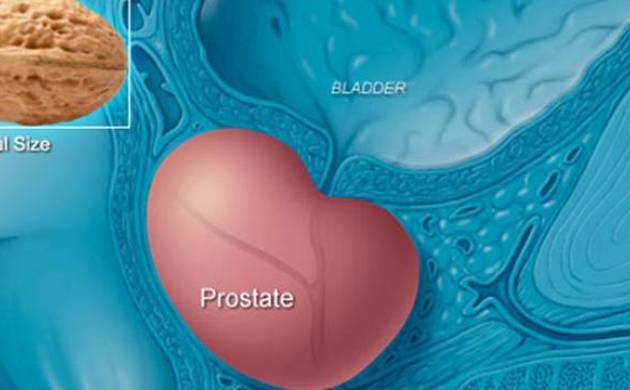 Scientists develop three-in-one blood test for precision prostate cancer therapies (File Photo)