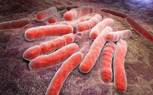 India lagging in global standards for tuberculosis