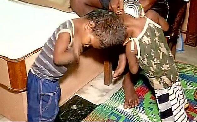 New Delhi: AIIMS doctors to perform Craniopagus surgery to separate Odisha twins joined at head