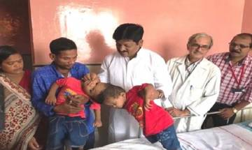 Conjoined twins from Odisha undergo complicated surgery at AIIMS, separated partially
