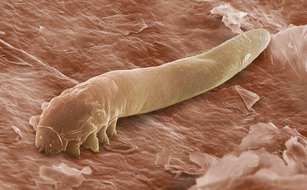 The study was conducted on a collection of 20 million parasites (Agency picture)