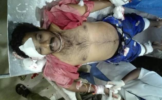 Kerala: Miscreants attack RSS activist in Kannur, BJP claims assault handiwork of CPI-M. (Source: ANI)