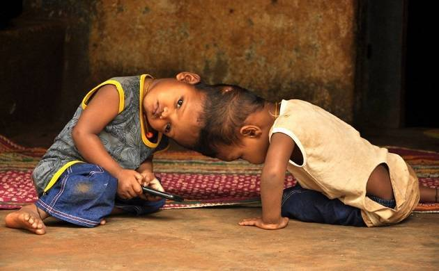 Kalia and Jaga, the two craniopagus twins were conjoined at the head