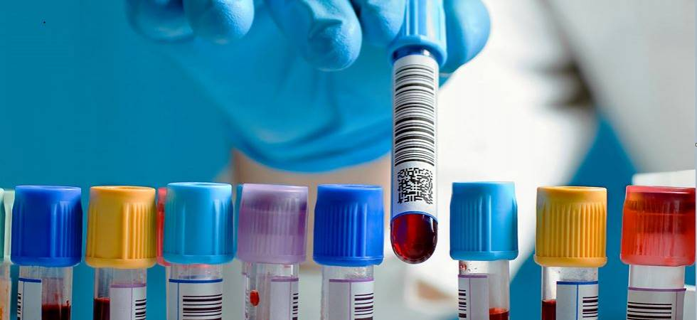 New blood test can detect pancreatic cancer quickly, new study reveals (Representative Image)