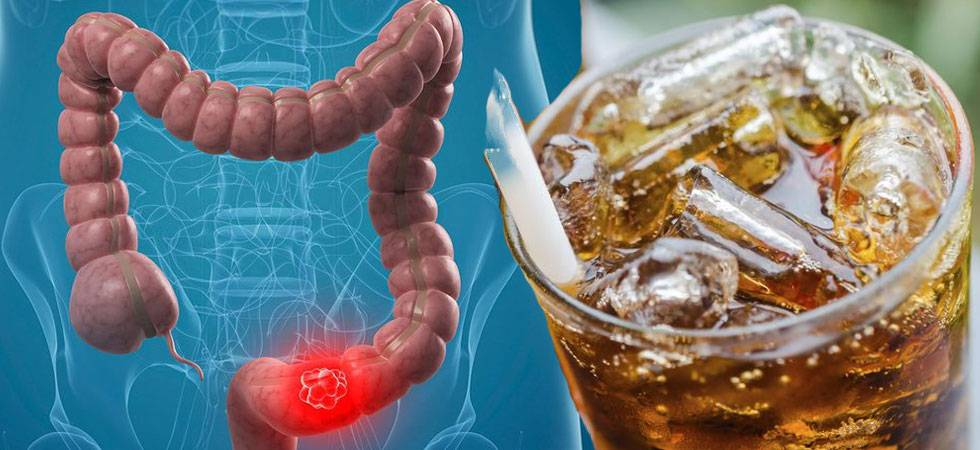 Colon Cancer – Diet Soda may help avoid recurrence