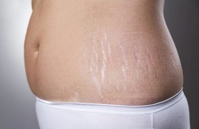 Simple home remedies to get rid of cellulite