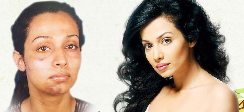 Stree actress Flora Saini accuses Gaurang Doshi of assault; Shares picture of broken jaw/ Image: Facebook/FloraSaini