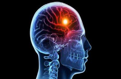 World Stroke Day: Stroke symptoms you should never ignore
