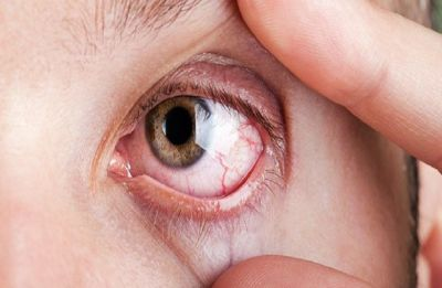 Dry Eye Syndrome: Easy and efficient ways to improve eye health