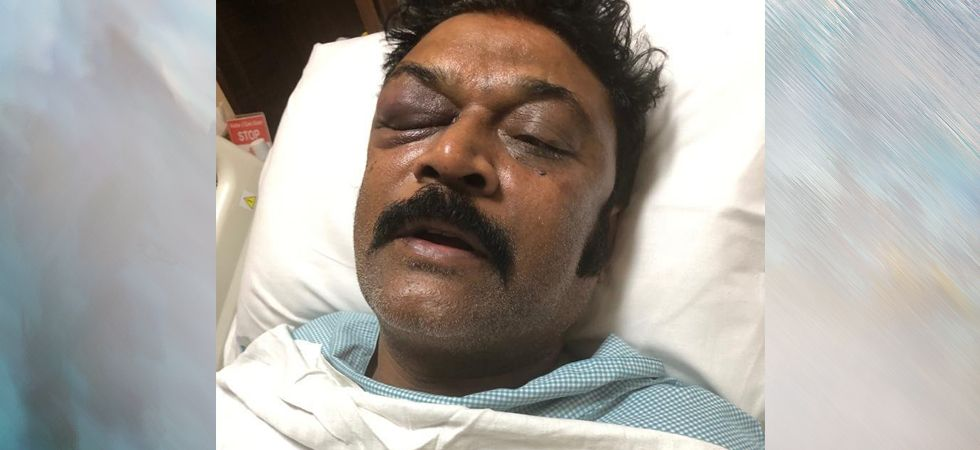 Presently, Congress MLA Anand Singh is taking treatment in Apollo Hospital after the reports of an alleged brawl with Congress MLAs JN Ganesh and Bheema Naik. (Image Credit: ANI)