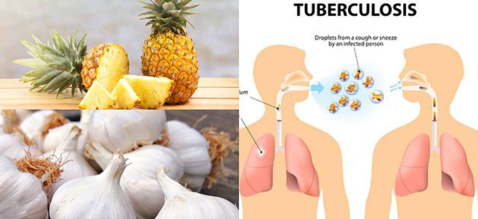 Word Tuberculosis Day:  Natural remedies that can soothe the symptoms of TB