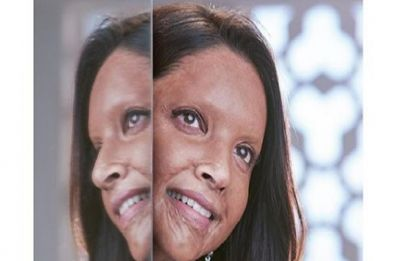 Deepika Padukone's Chhapaak look wins praises from Priyanka Chopra, Varun Dhawan and others