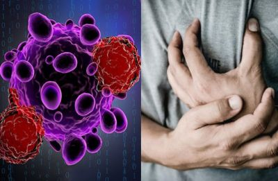 Cancer therapy may up heart disease, diabetes risk in men: Study