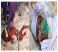 World's smallest baby, weighing no more than an apple is now a healthy infant, goes home after 5 months in intensive care