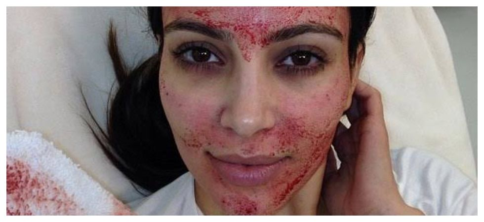 Vampire facial is popularly used as an anti-aging treatment (Photo: Instagram)