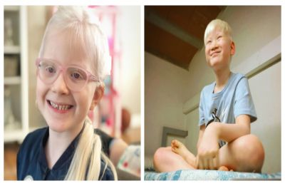 International Albinism Awareness Day 2019: Images of different people with the condition that shows being 'different' is beautiful