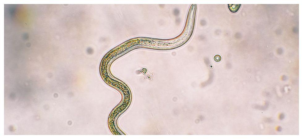 Drug-resistant parasites