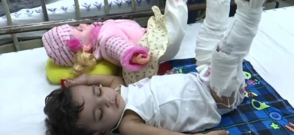 Doctors Plaster 11-Month-Old's Doll To Convince Her For Treatment Of Fracture. (Image: ANI)