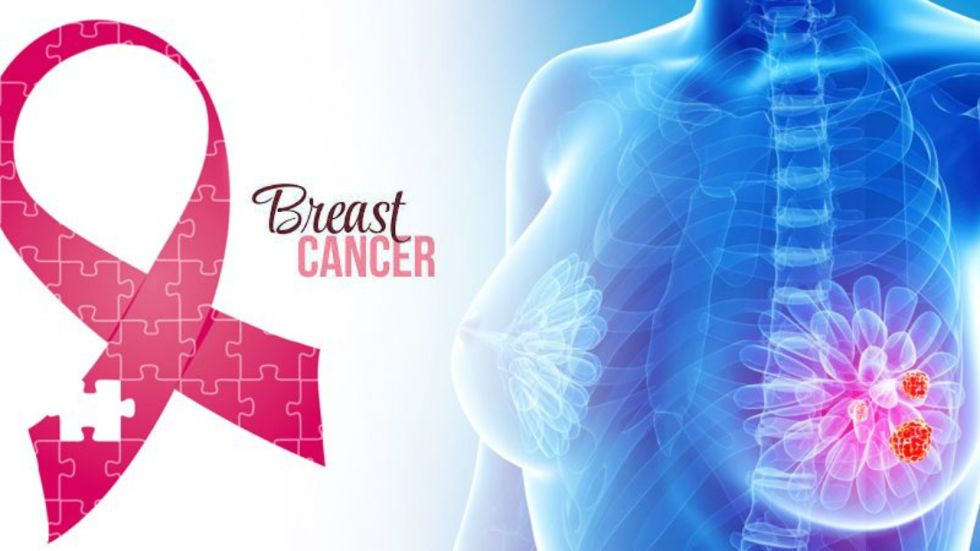 New Drug Combo To Treat Aggressive Breast Cancer Developed (Photo Credit: Ramesh Negi /NewsNation.in)