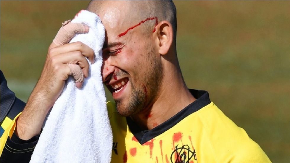 With blood on Agar's face, teammate Jhye Richardson called for medical assistance.